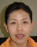 Cai Meiyu